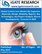 Global Contact Lens Market (By Segments, Materials, Design, Modality, Region), Key Technologies, Key Players Analysis, Recent Developments - Forecast to 2025